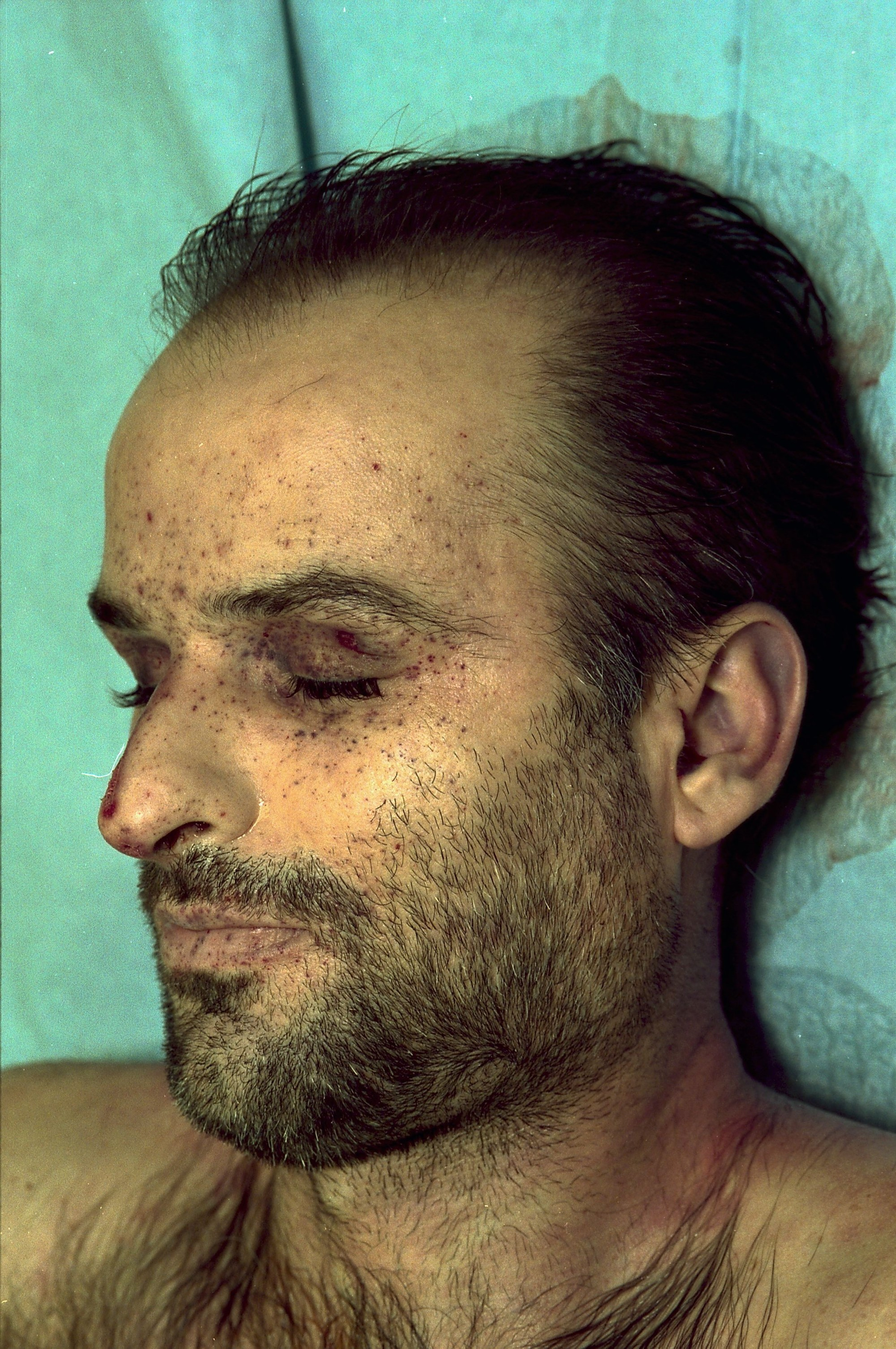 Onbekende dode man in Flevopark