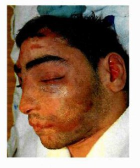 Onbekende dode man aangetroffen in Zandvoort
